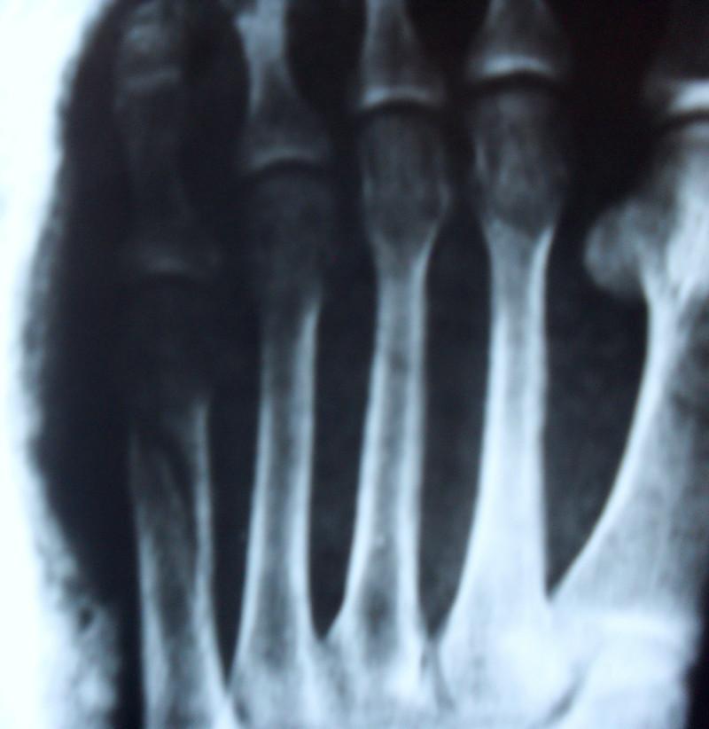 Перелом плюсневой кости