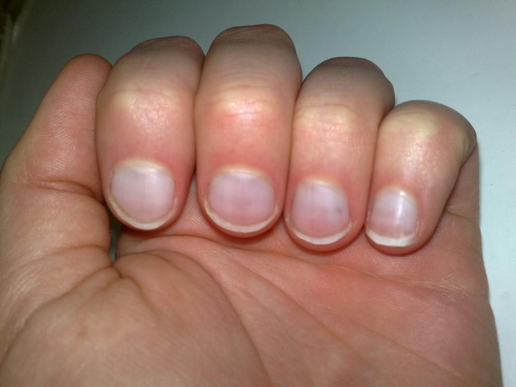 Кожа при болезнях щитовидной железы (тиреоидная дермопатия)