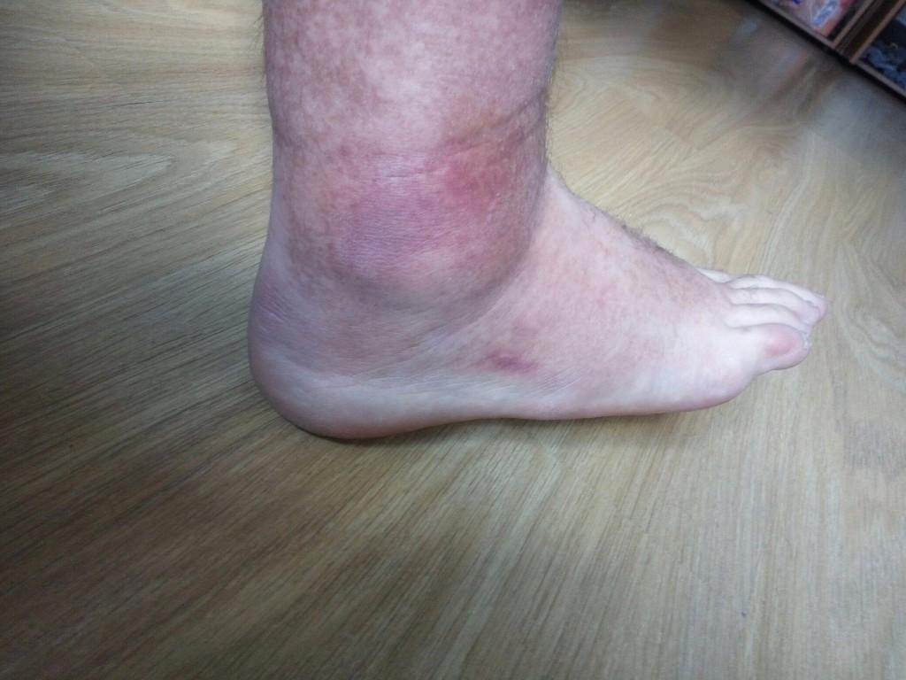 Резкая крутящая боль в ноге