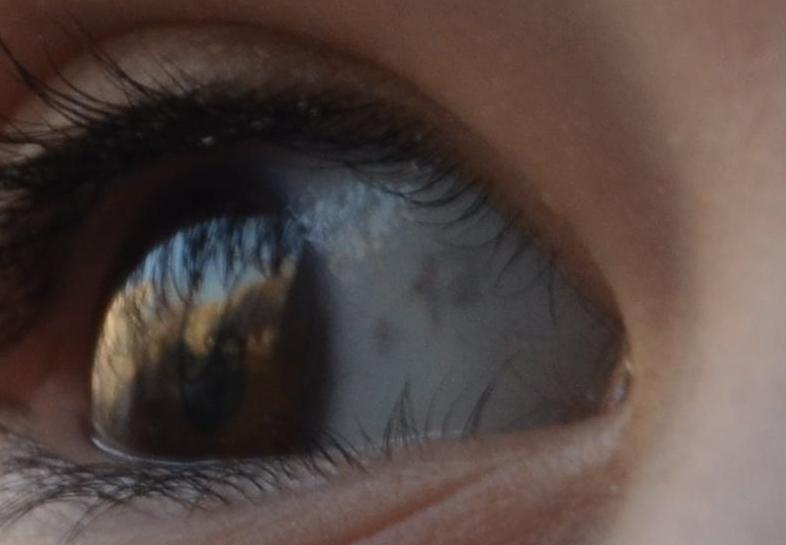 Пятно Глазное