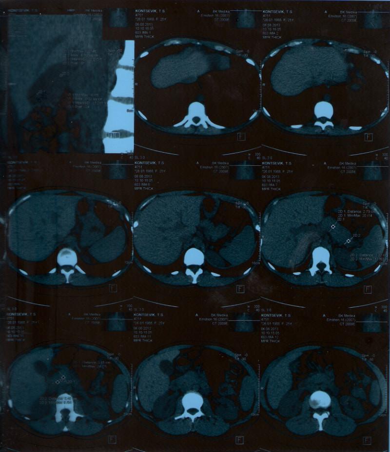 Чем снять боль в спине после эпидуральной анестезии