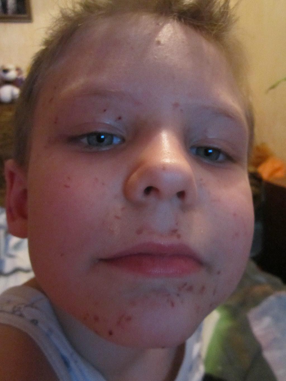аллергия на шампунь на лице