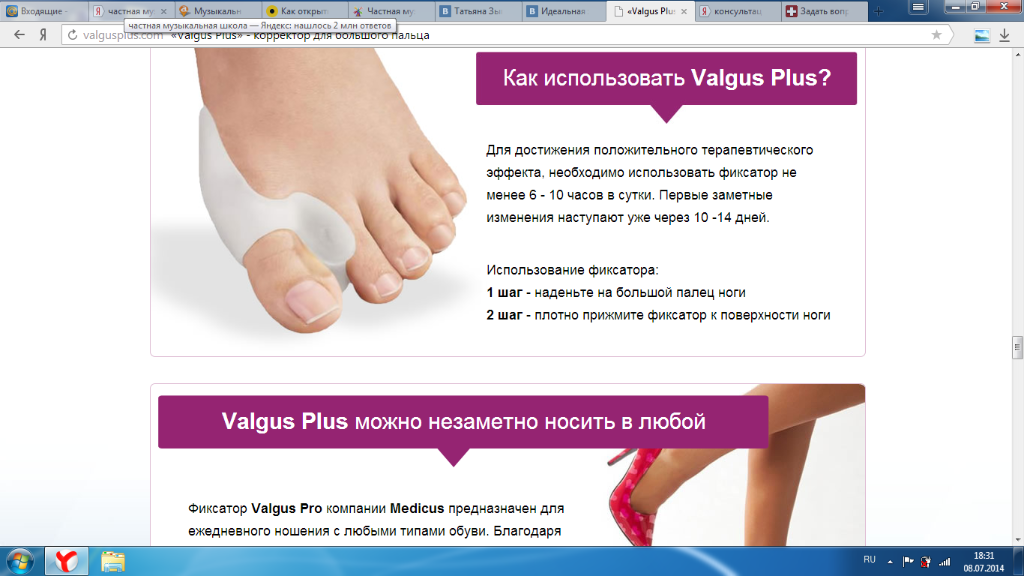 Лечение косточек на ногах без операции