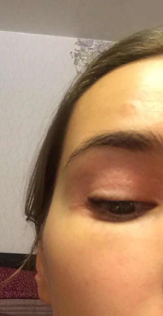 как снять кожную аллергию