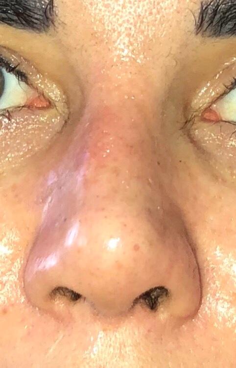 Как снять отек носа у беременных 50