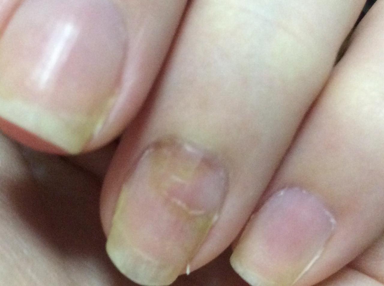 От чего на ногтях появляются ямки фото