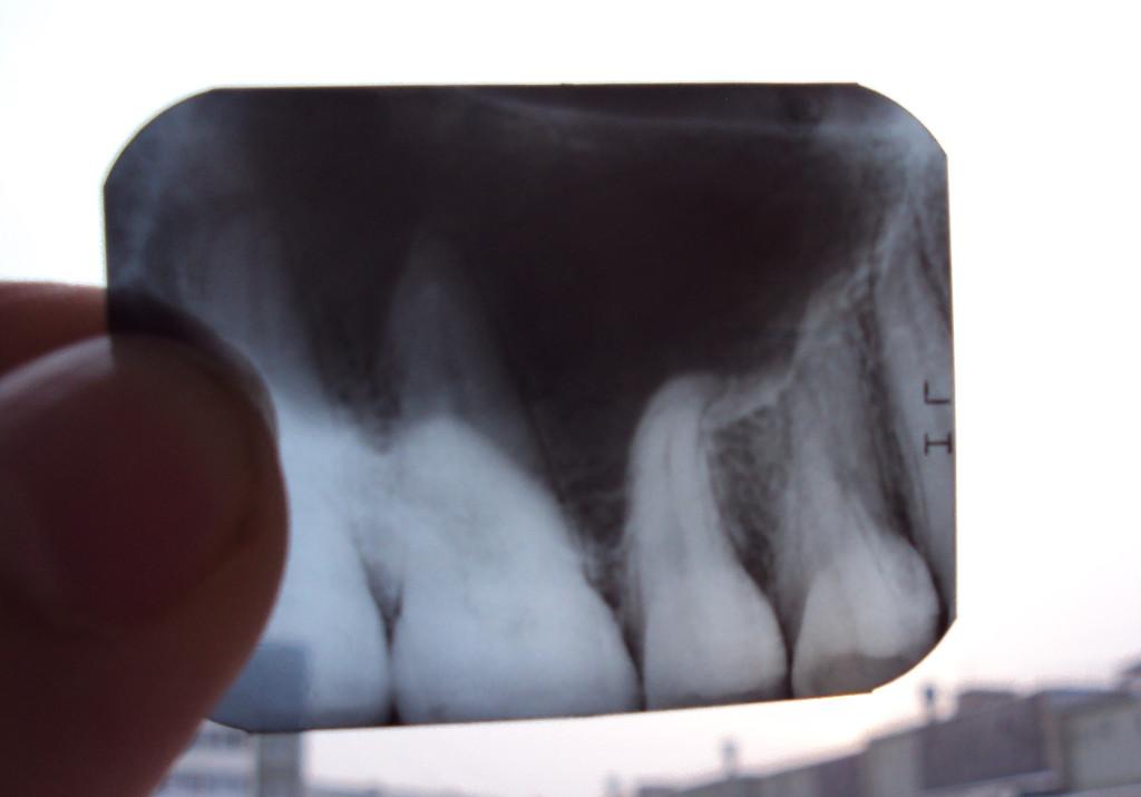 Зубы сильно болят от холодного и горячего