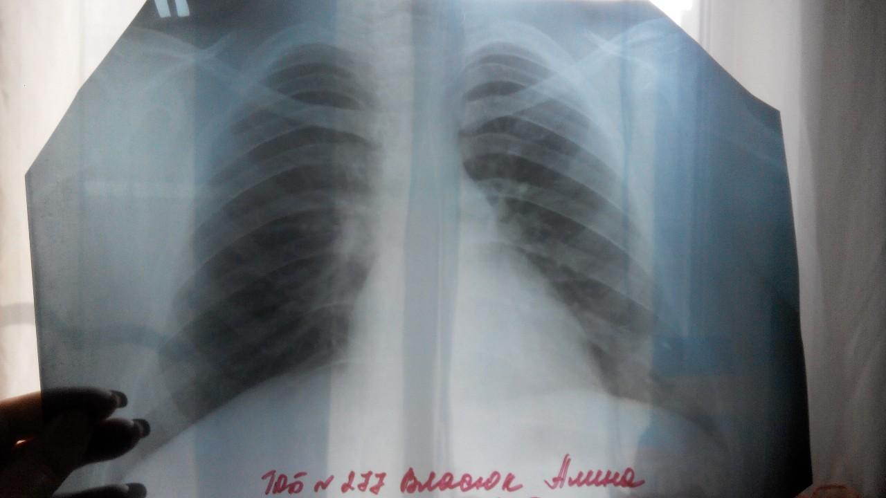 диаскинтест можно ли при аллергии