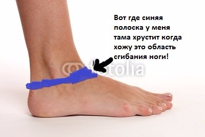 Скрипит сустав ноги