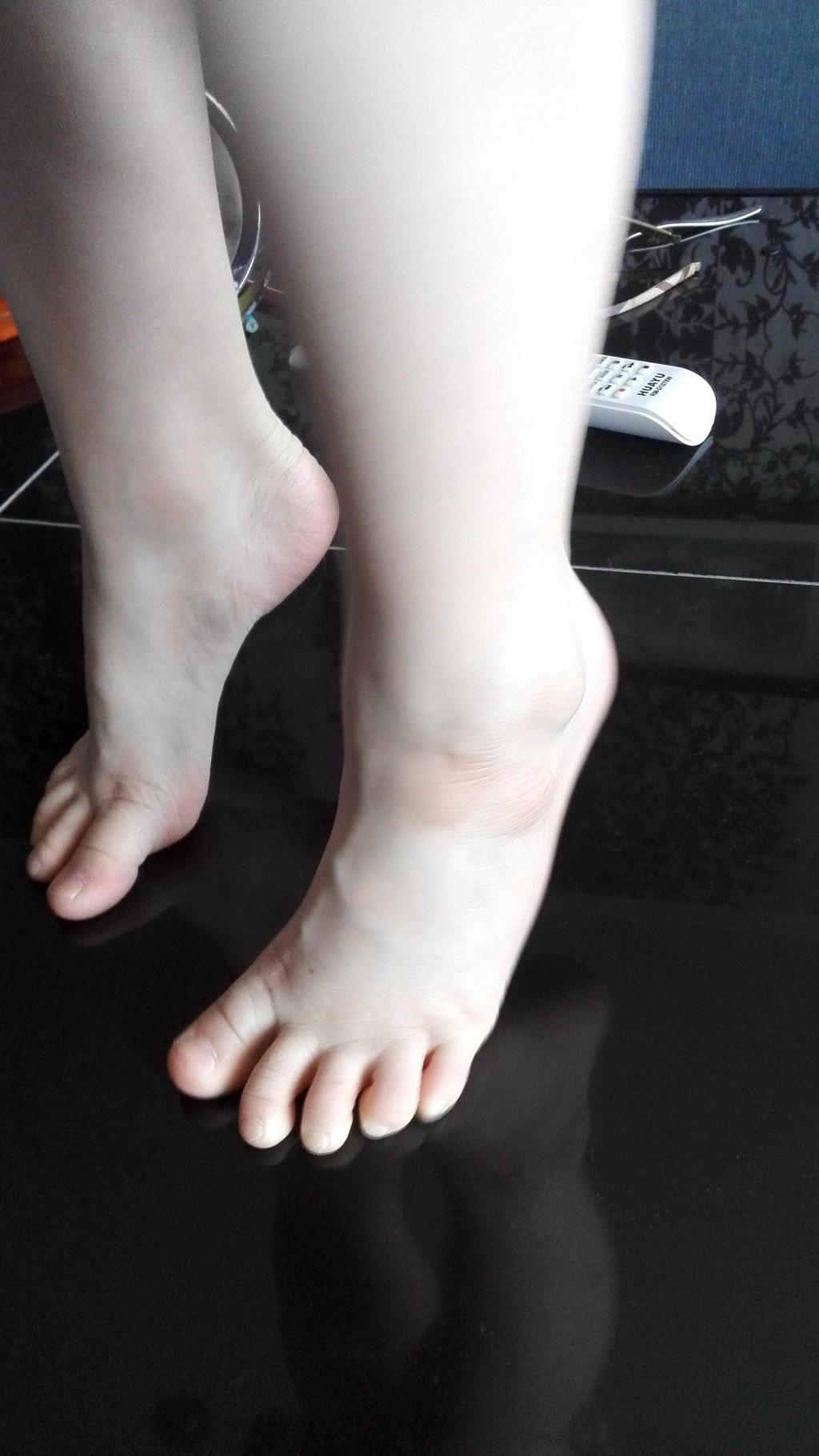 Шишки на ногах у детей фото