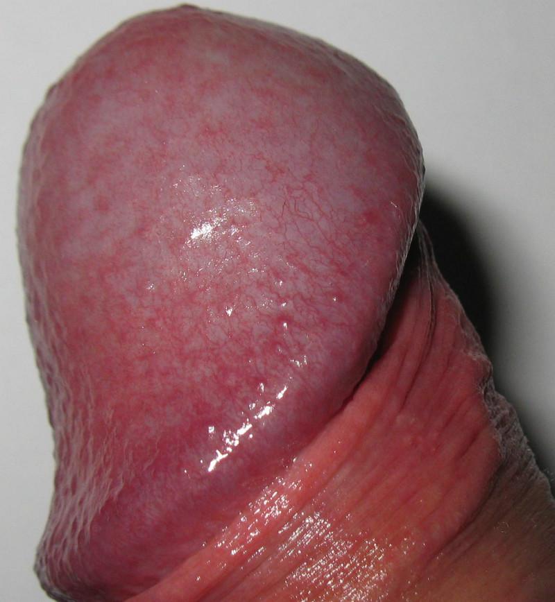аллергический дерматит члена