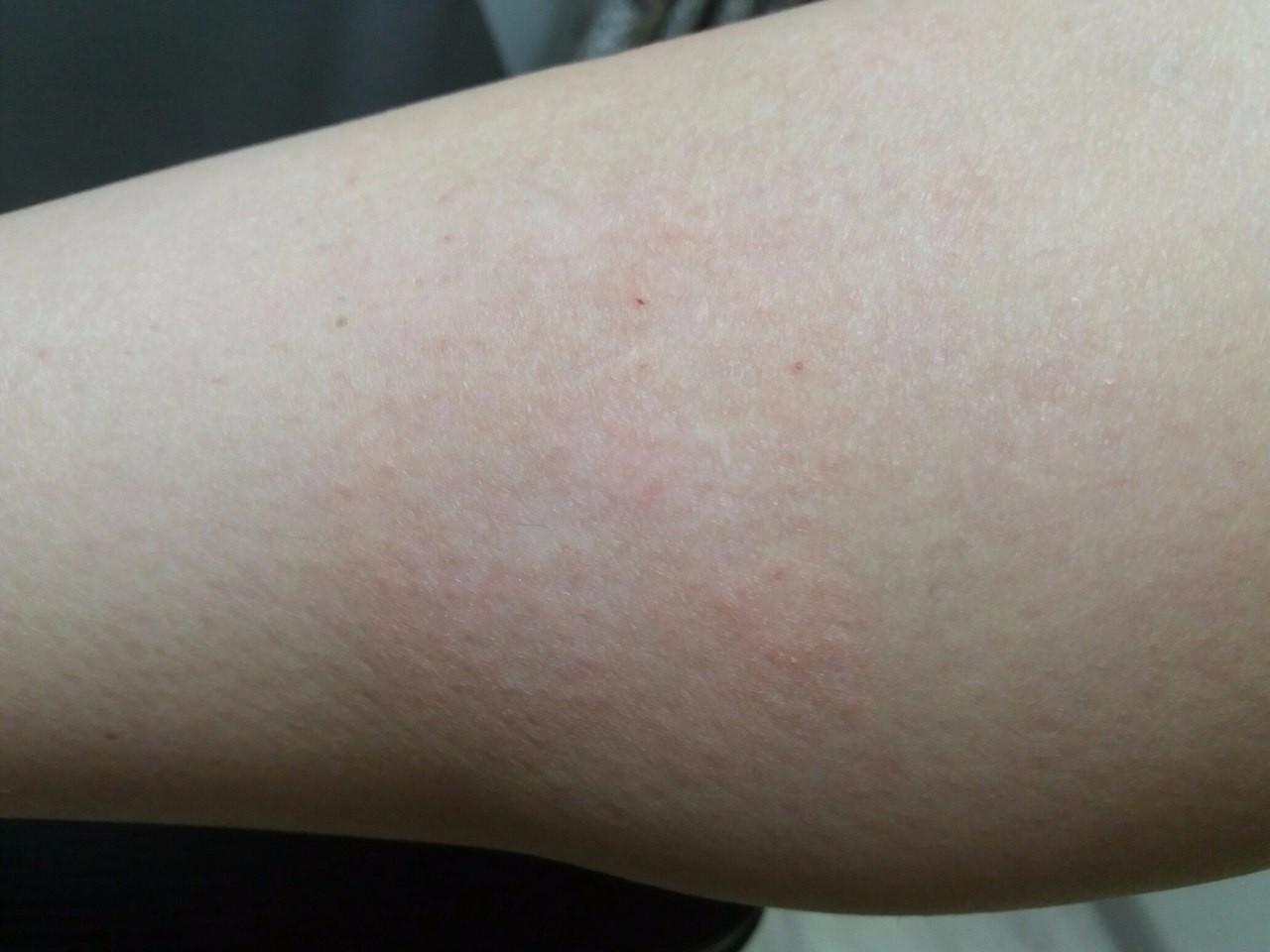 Почему кожа сохнет и шелушится на ногах