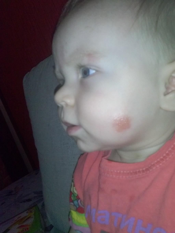 Красные щеки у детей что делать 2
