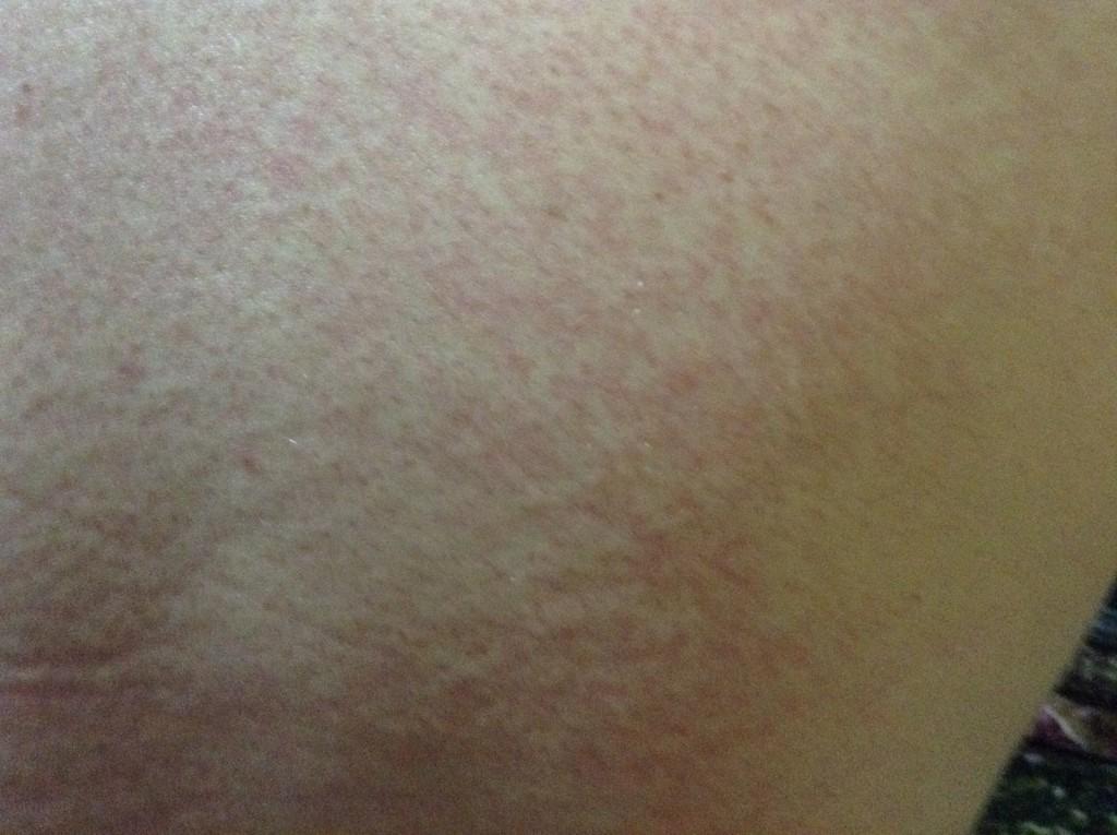 сыпь на теле у взрослого аллергия