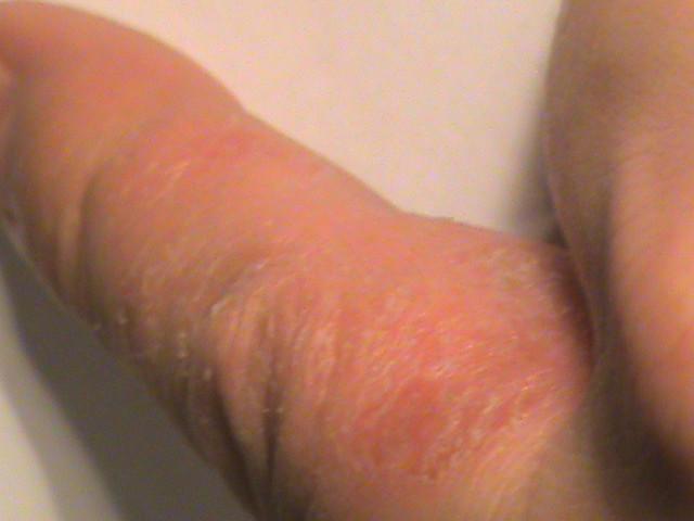 Экзема между пальцами рук лечение