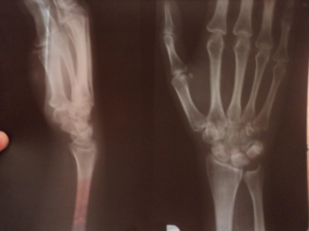 аллергия на сгибе руки