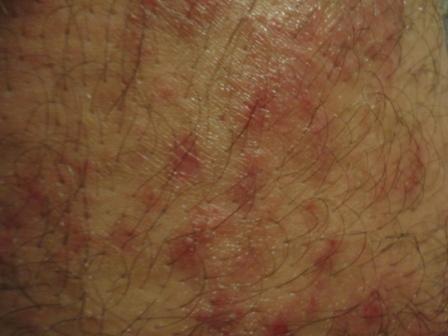 Сыпь на члене от простатита пижма простатит