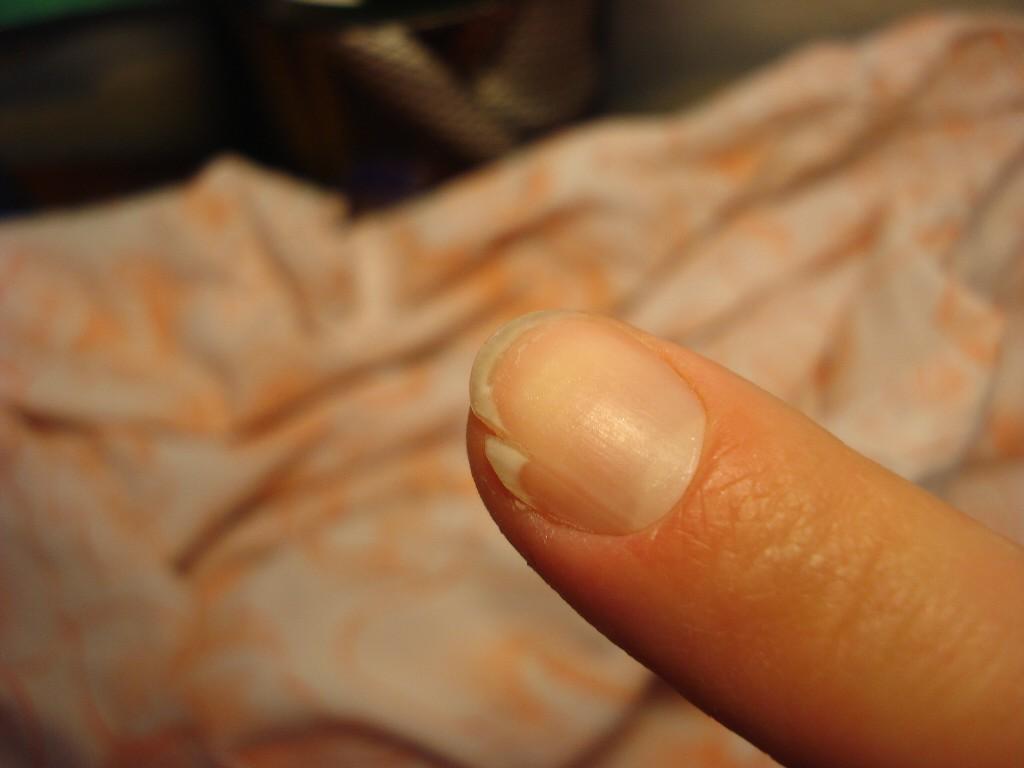 Растрескивание ногтей на руках