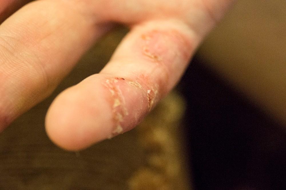 Мелкие язвочки на руках