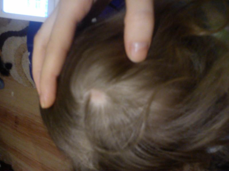 На волосах появилось пятно без волос что это