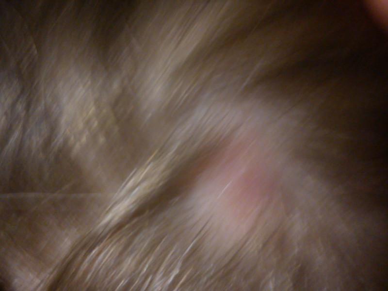 Лысое пятно на голове