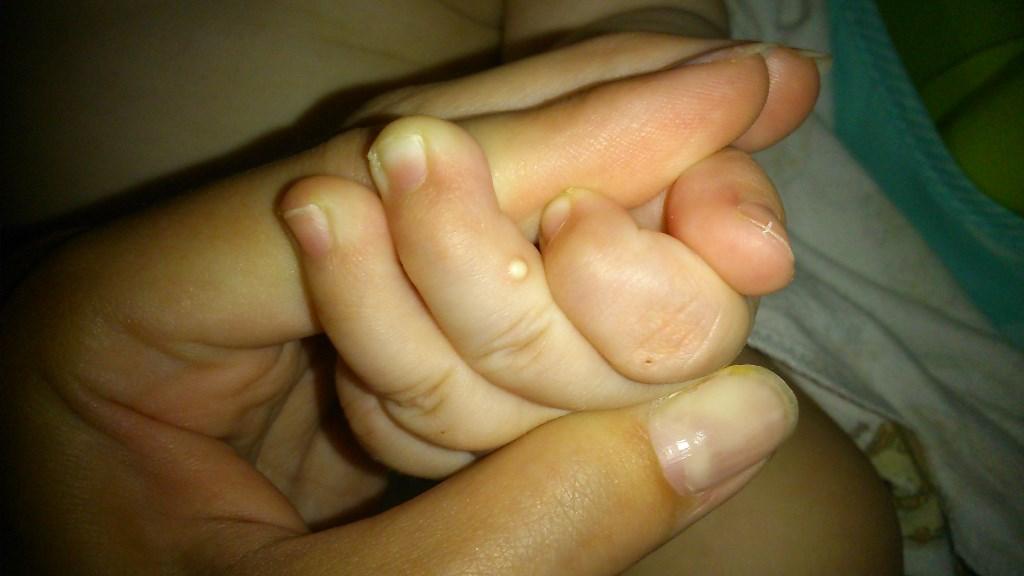 Прыщики на пальцах у ребенка фото