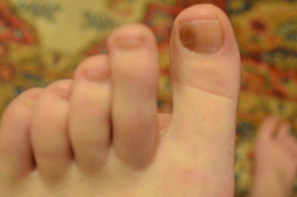 Черные ногти на больших пальцах ног