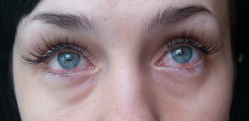 аллергия после краски