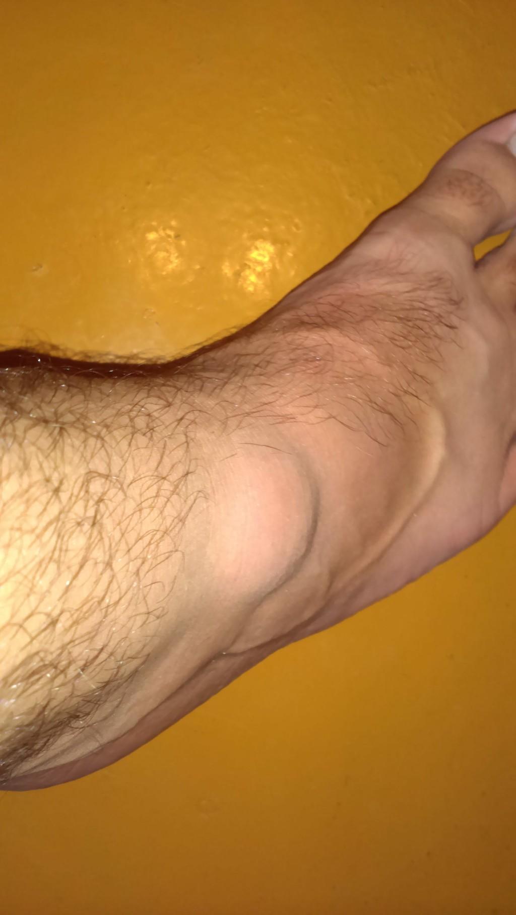 Появилась шишка на ноге возле косточки