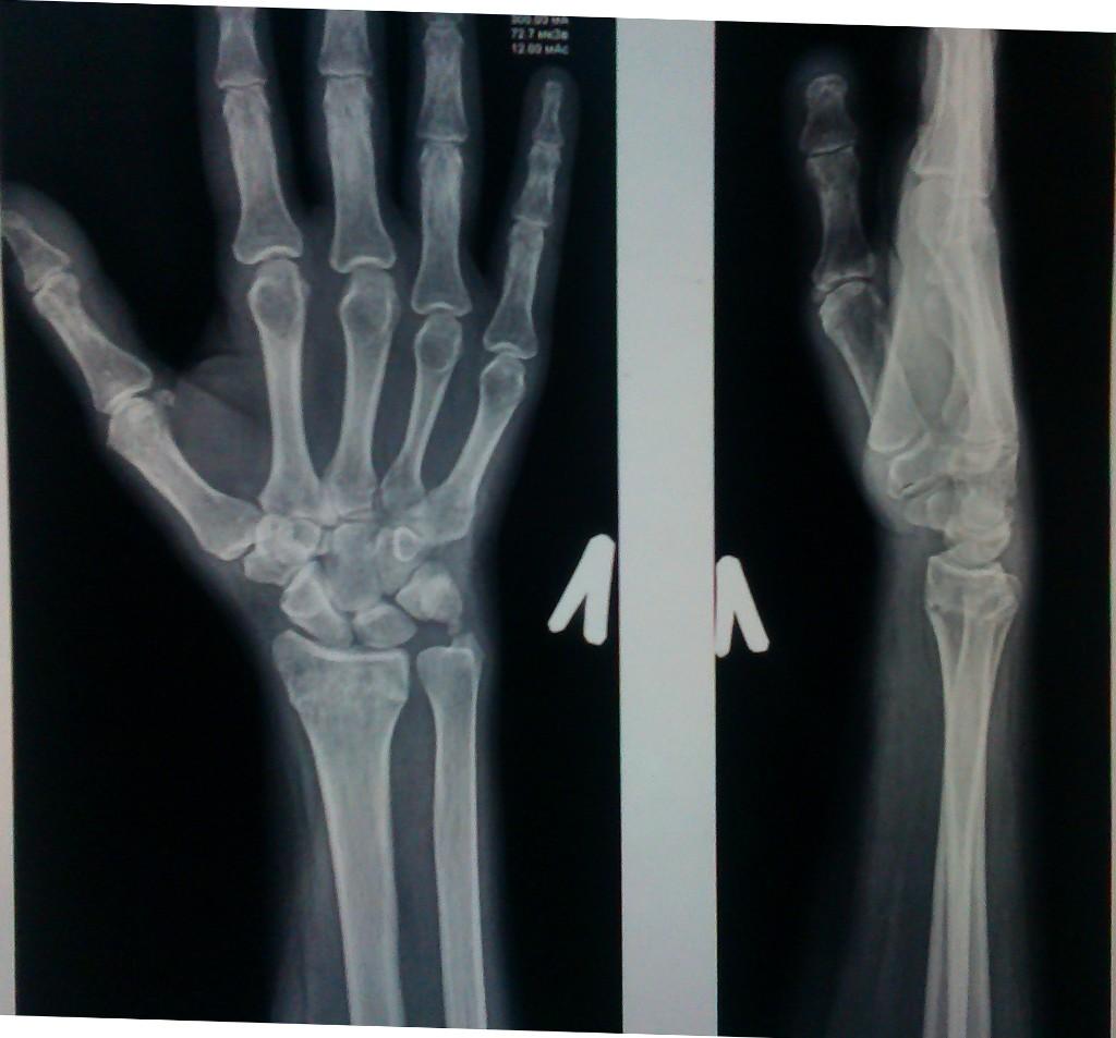 Перелом лучевой кости с отрывом шиловидного отростка - Вопрос ...