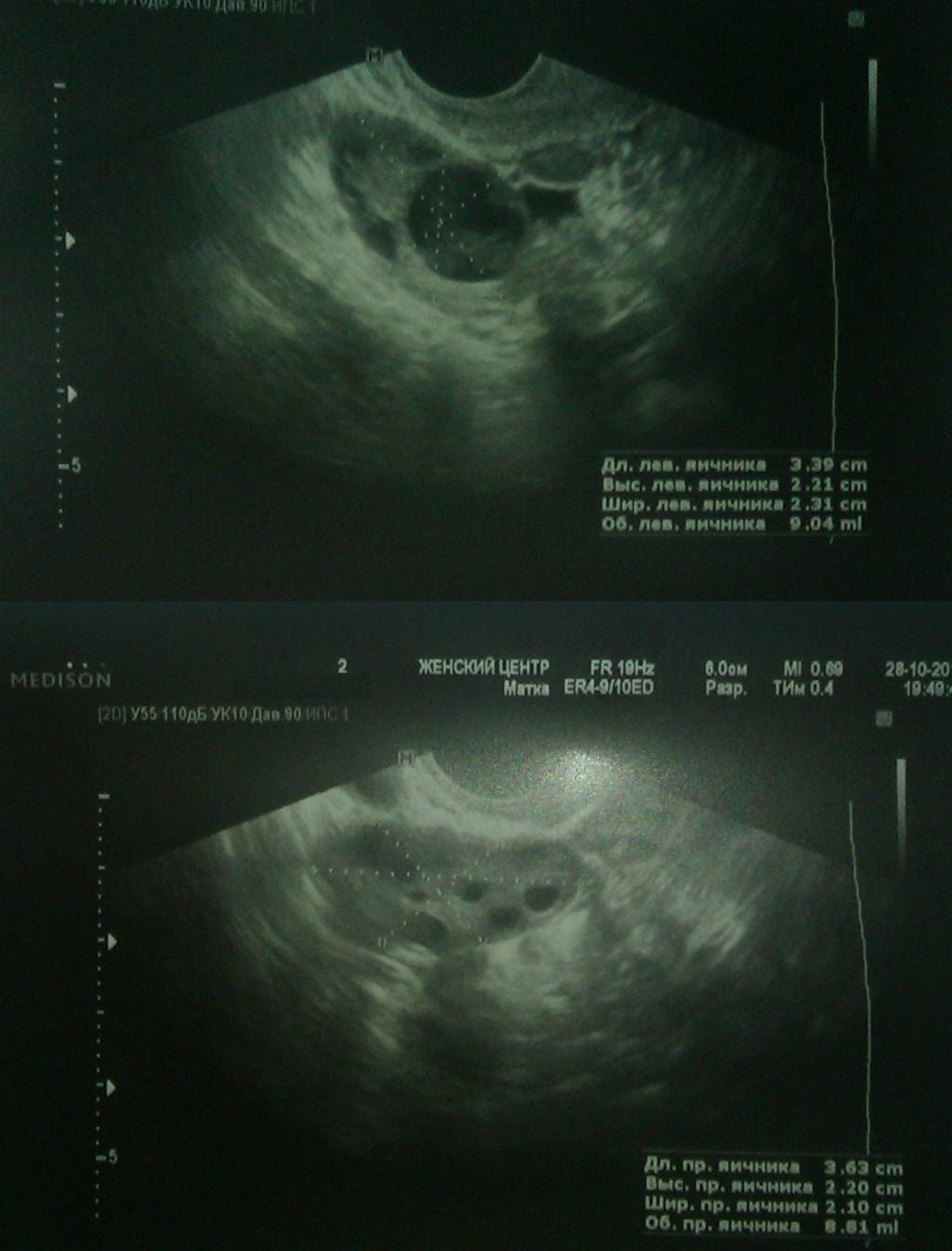 Выделения при беременности коричневые дюфастон