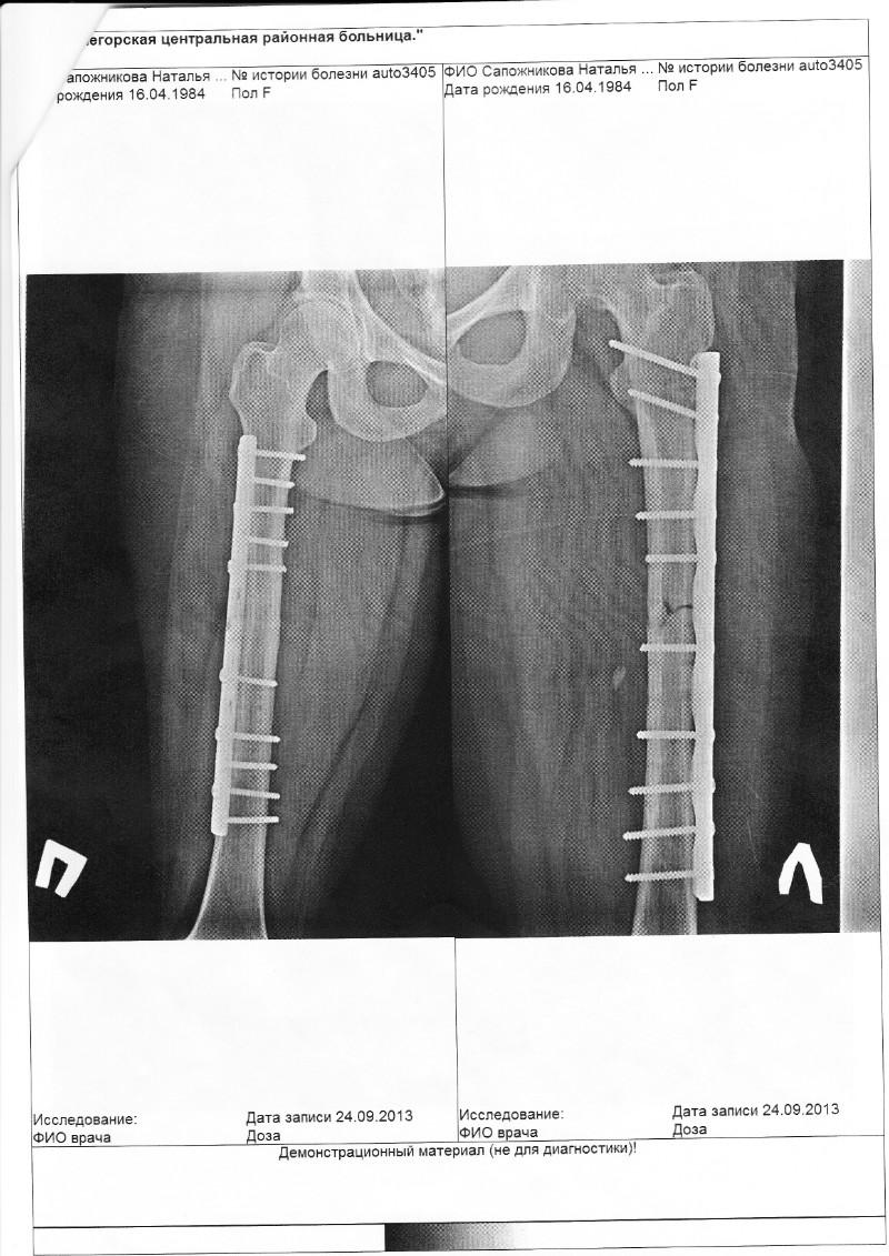 нагрузка на ногу после перелома