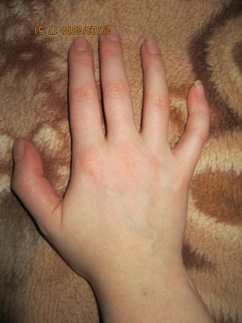 временным крючковатые пальцы фото радостен
