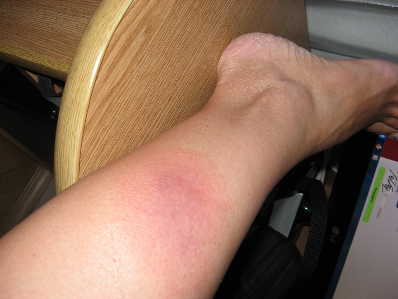 красные уплотнения на ногах фото такого