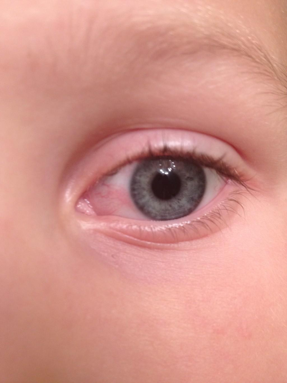 Краснота под глазами у ребенка причины и фото