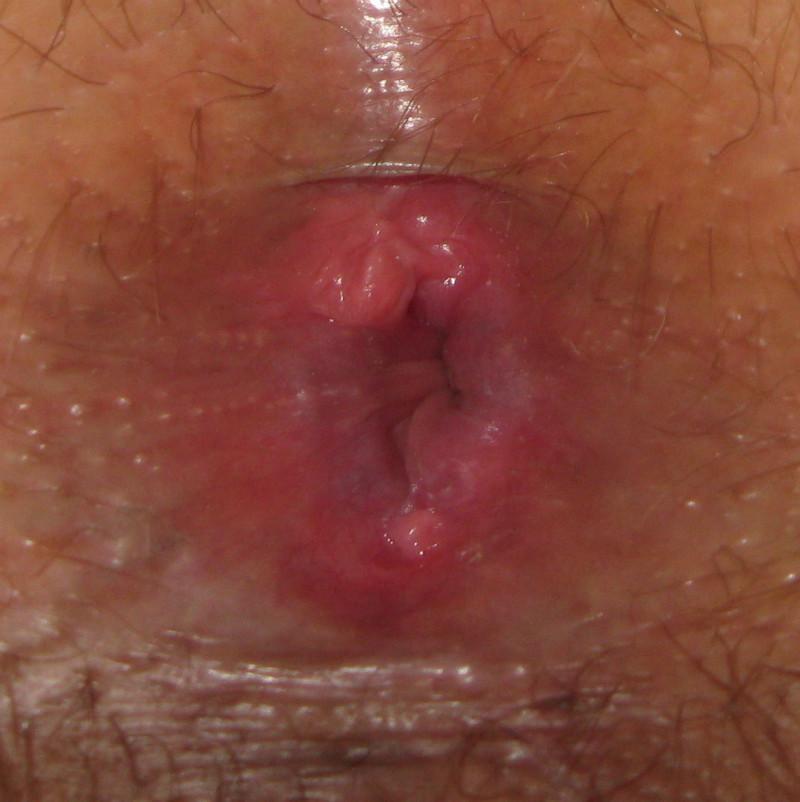 Лечение ущемление геморроидального узла