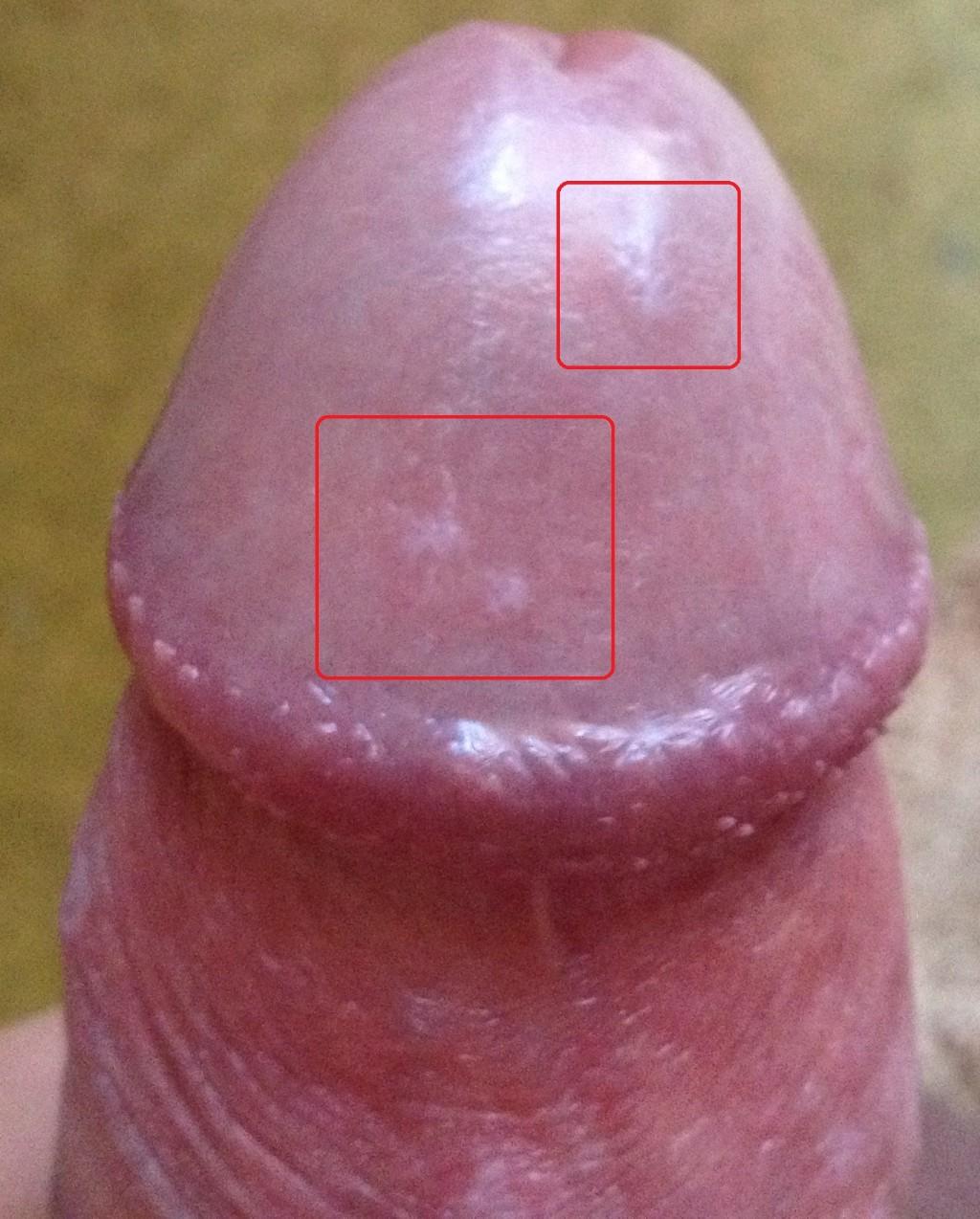 головка полового члена красная