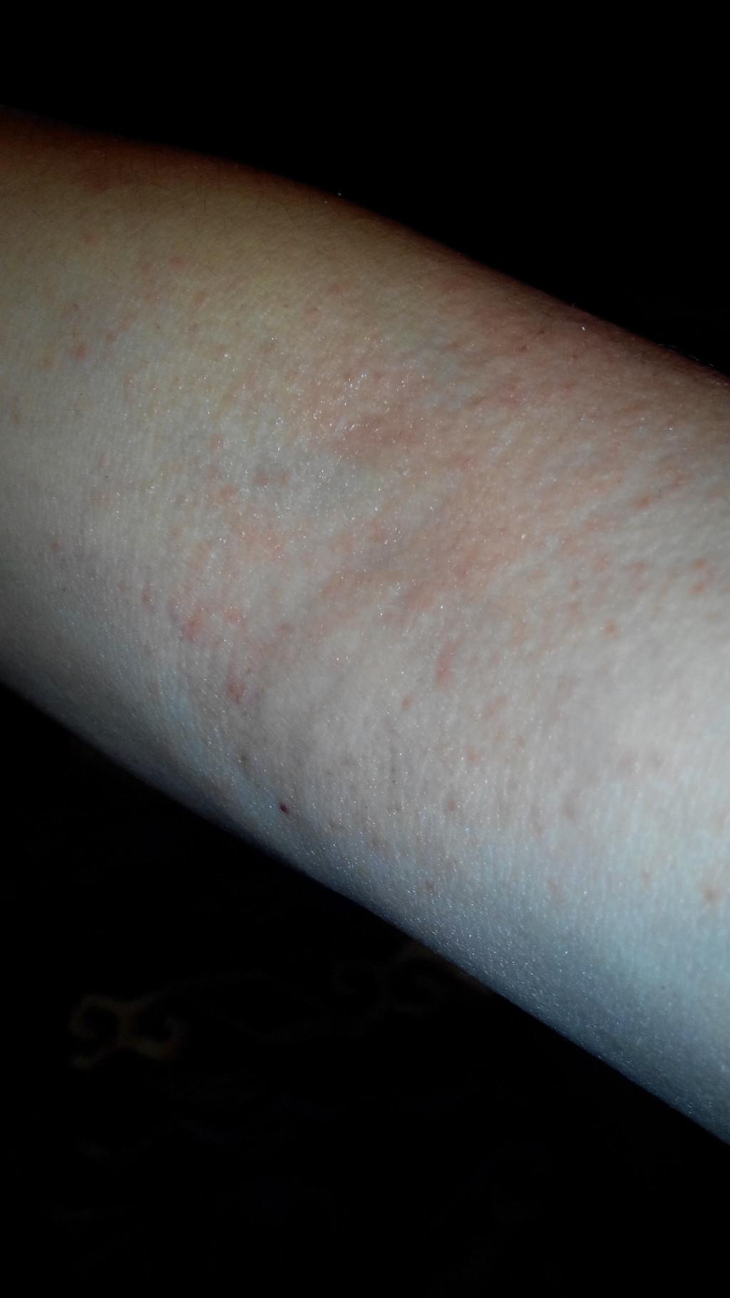 аллергия на локтях и коленях причины