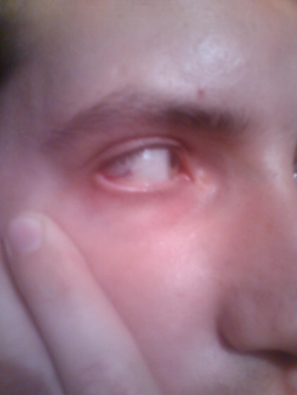 Ребенку кот поцарапал глаз