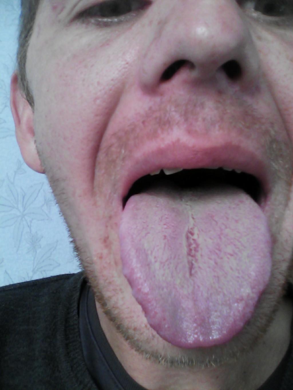 запах изо рта к какому врачу обратиться