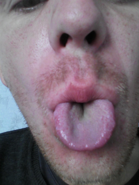 плохой запах изо рта как лечить