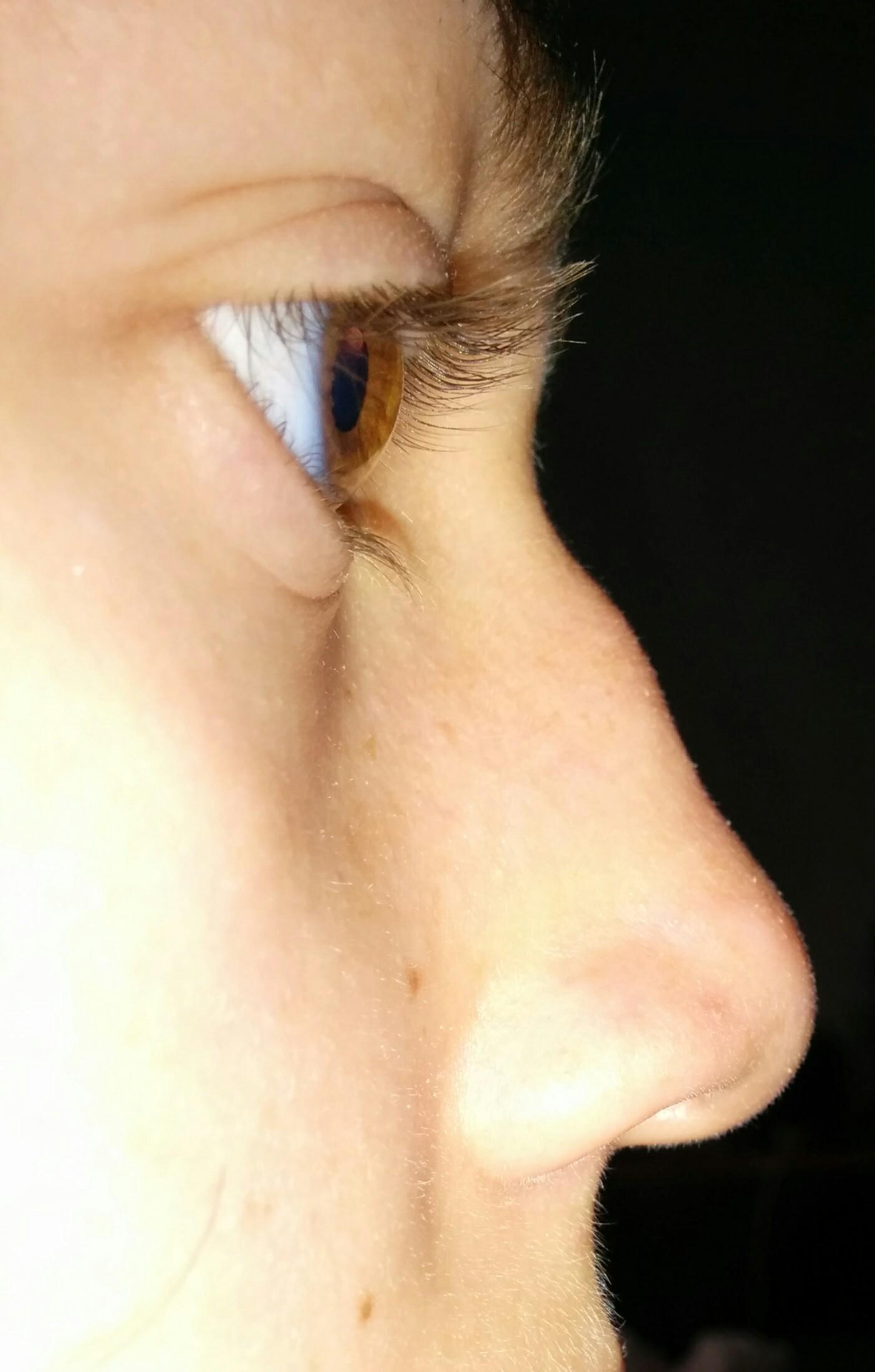 Нос провалился после ринопластики