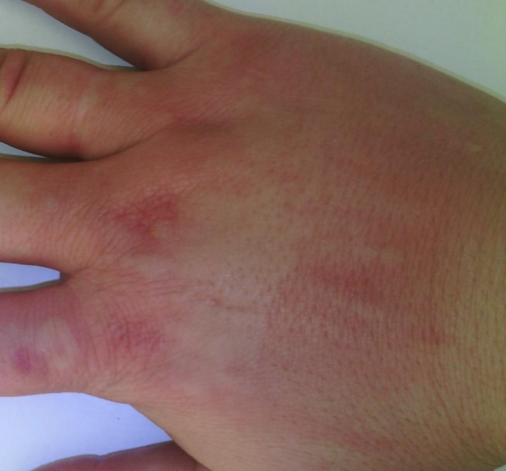 У меня появились красные пятна на теле и чешутся как лечить