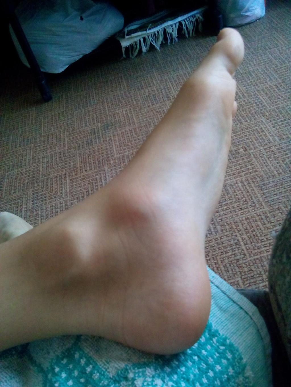 Косточка на ноге как с ней бороться