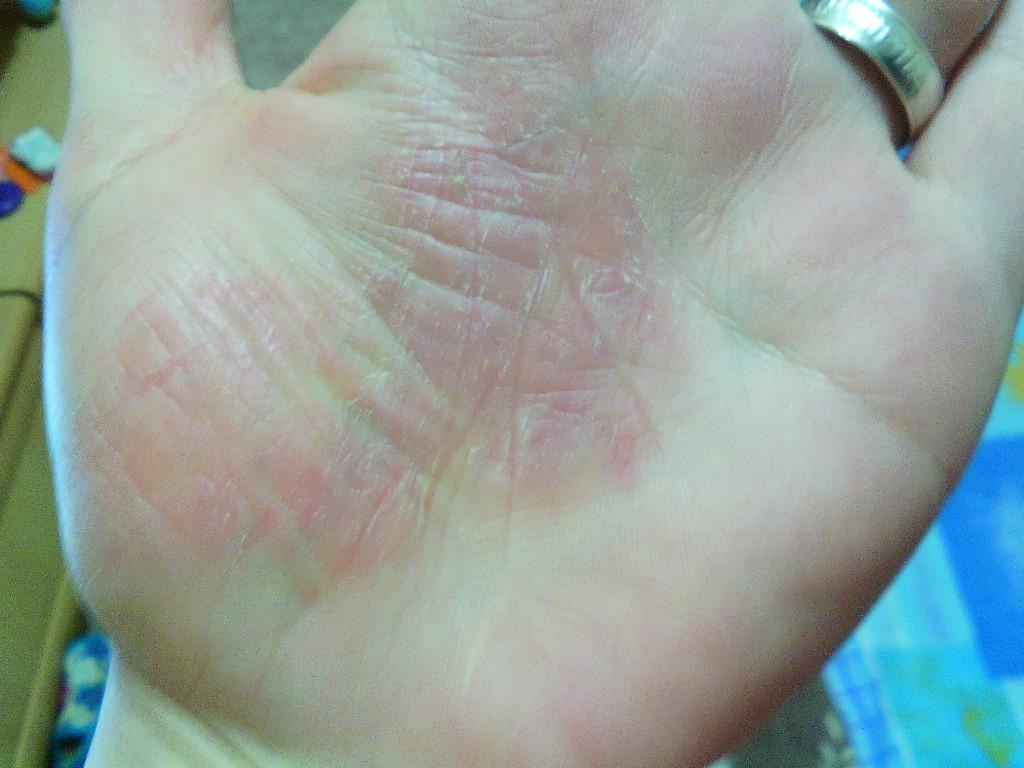 шелушится и чешется кожа