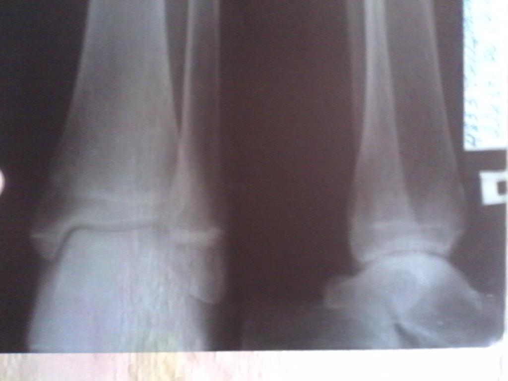Болит нога в области щиколотки: лечение и причины