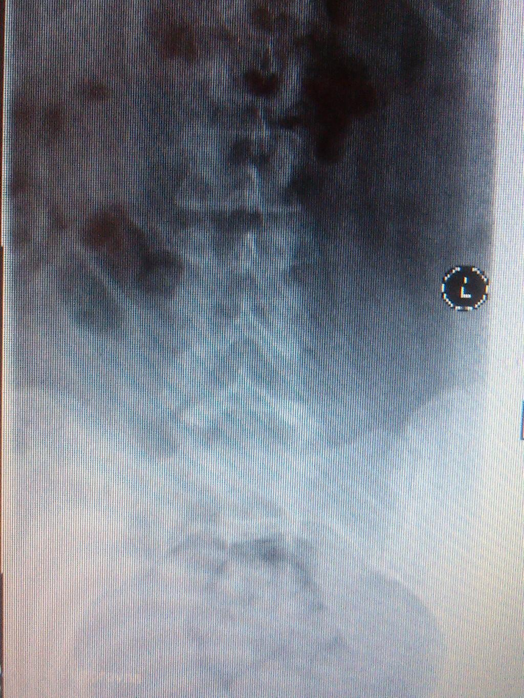 Ушиб позвонка грудного отдела лечение