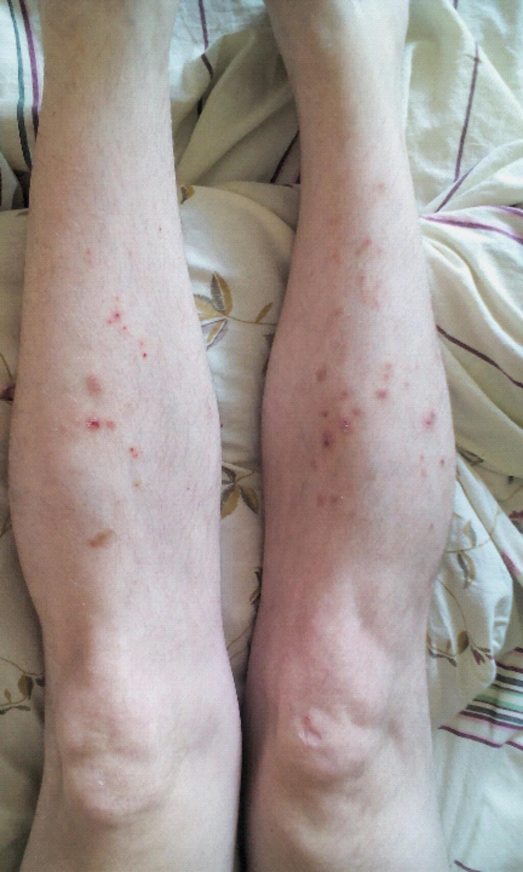 аллергия зуд не проходит