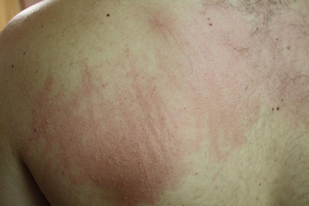 Аллергия после похудения