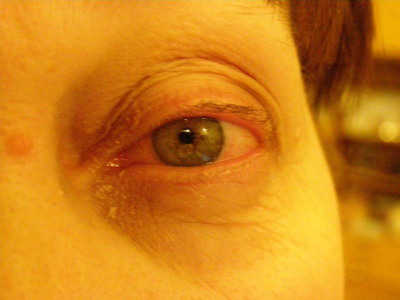 Красные глаза картинки - 155ba